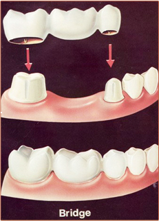 Dental crown or Dental Bridge is used to replaces broken or missing teeth