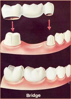 Dental crown or Dental Bridge is used to replaces broken or missing teeth