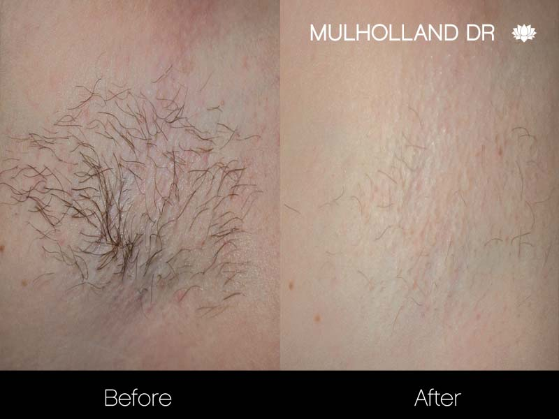 New Laser Hair Removal Technology Makes Total Body Hair