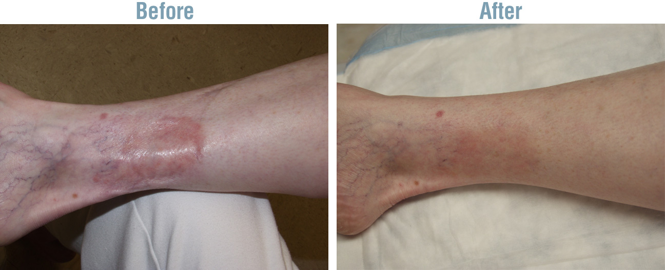 Vein Surgery Before and After