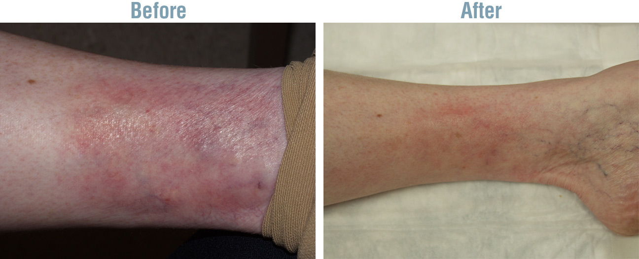 Vein Therapy Treatment Before and After