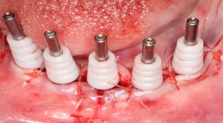 dental case surgical and restorative protocols 4