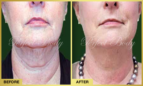 Perfect Body Laser & Aesthetics: Before and After