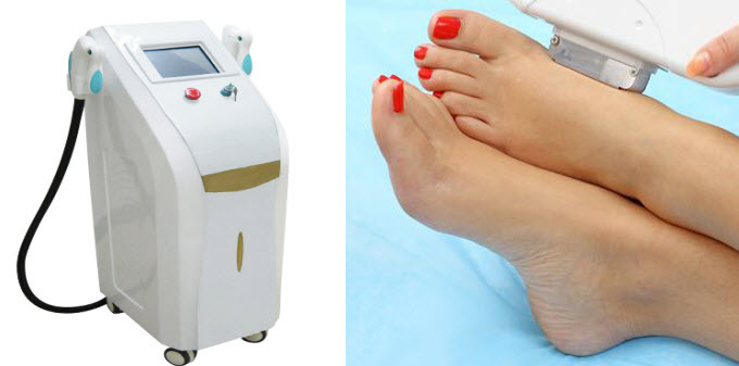 An Insight Into Different Types Of Methods For Hair Removal
