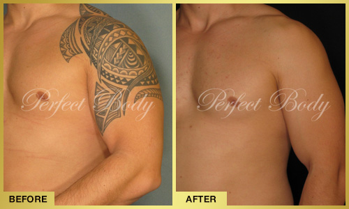 Perfect Body Laser Tattoo Removal