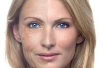 Before & After Picture of Face Treatment Using Ultra-Slim II