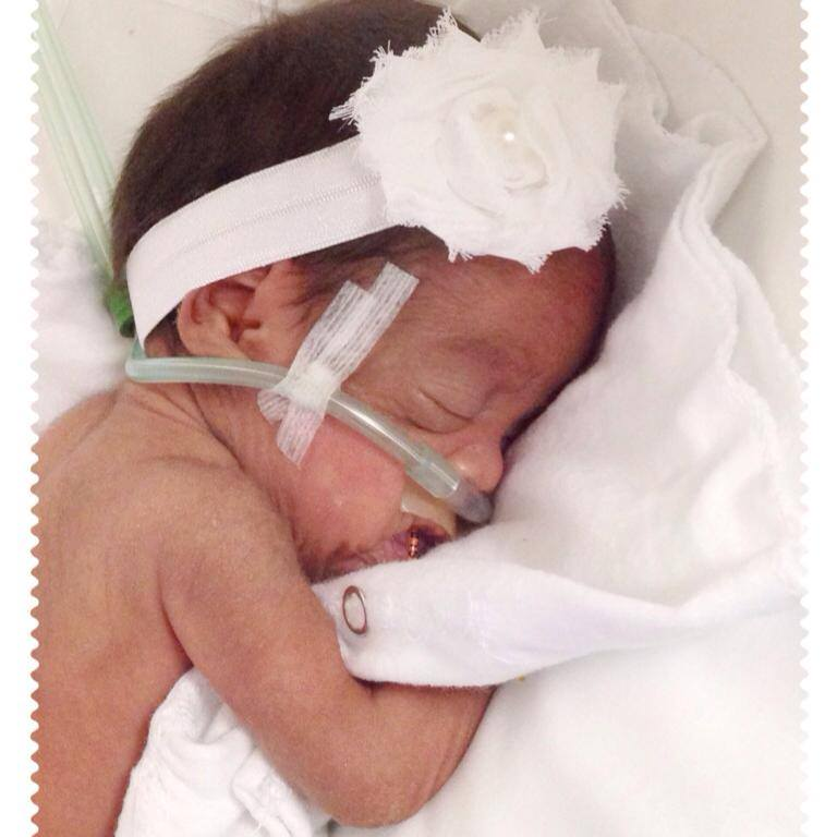 Emily The Miracle Baby