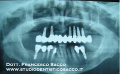 DR.SACCO IMPLANTOLOGIA 18kb- Copia