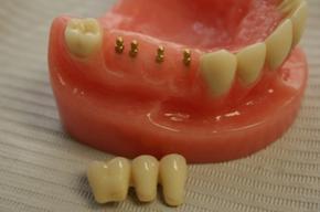 Dental Implant - Modern Family Dentistry of Issaqu