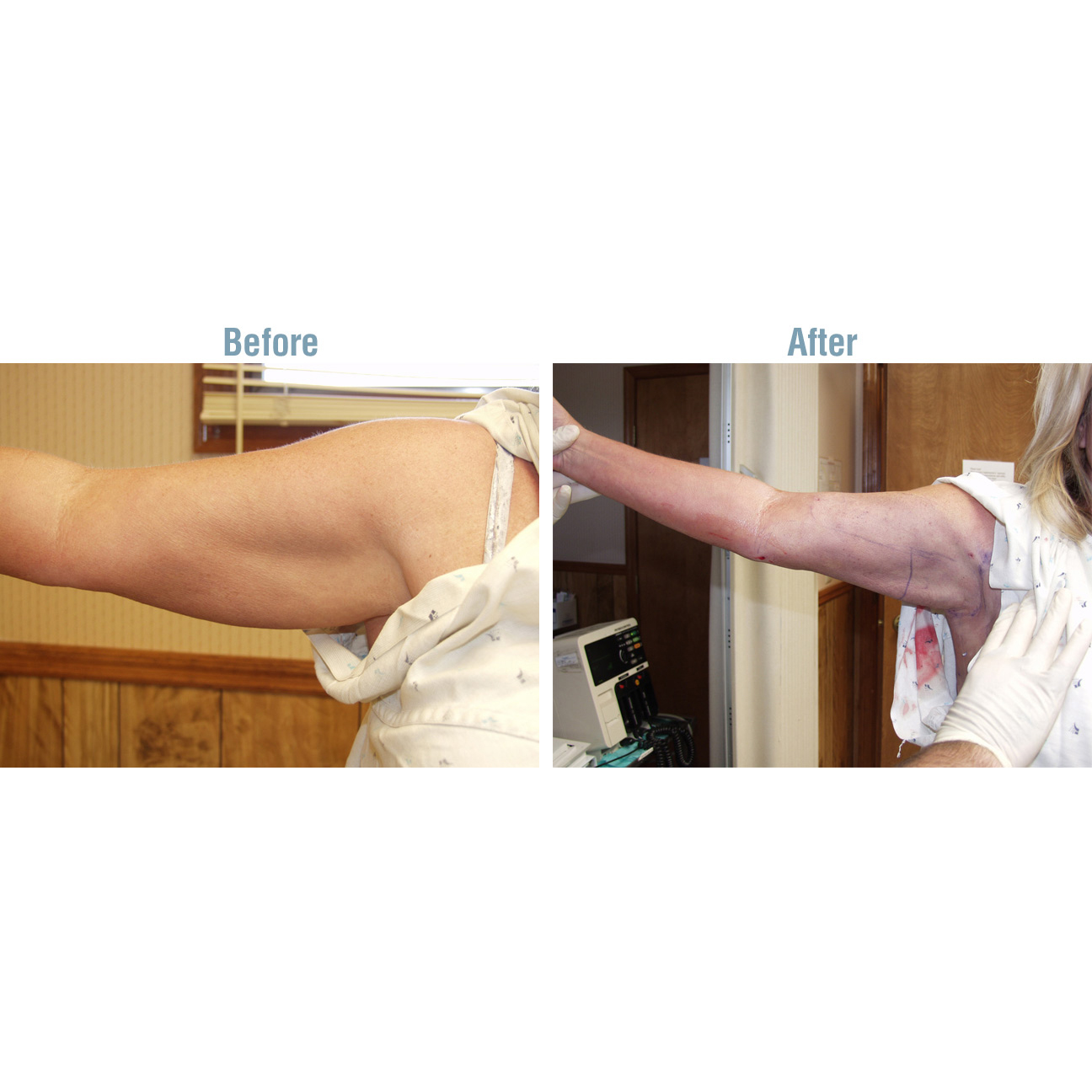 Laser Lipo Plus Before and After - Arm