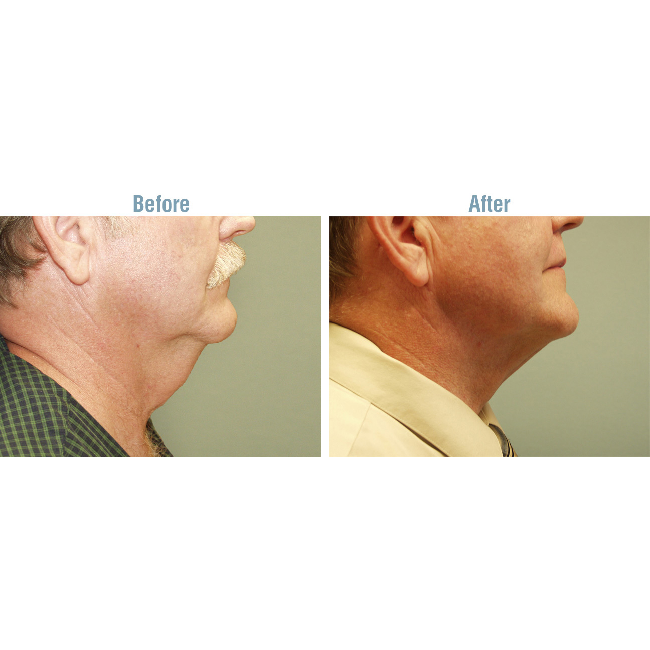 Laser Lipo Plus Before and After - Neck