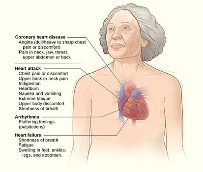 heart symptoms