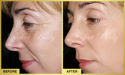 Perfect Body Laser Face Lift – Before and After