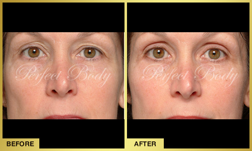 Perfect Body Laser Eyelid Lifting – Before and After