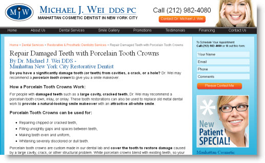 Porcelain Tooth Crowns in NYC, Manhattan by Dr. Michael J. Wei, DDS