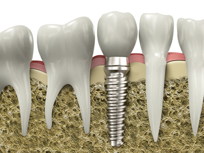 San Francisco Dental Implants