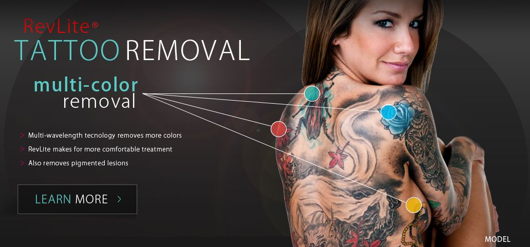 Accents Cosmetic Surgery Announces New RevLite Laser Tattoo Removal ...