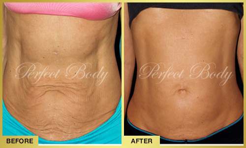 Perfect Body Laser Skin Tightening – Before and After