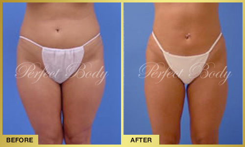 Perfect Body Laser Body Reshaping – Before and After