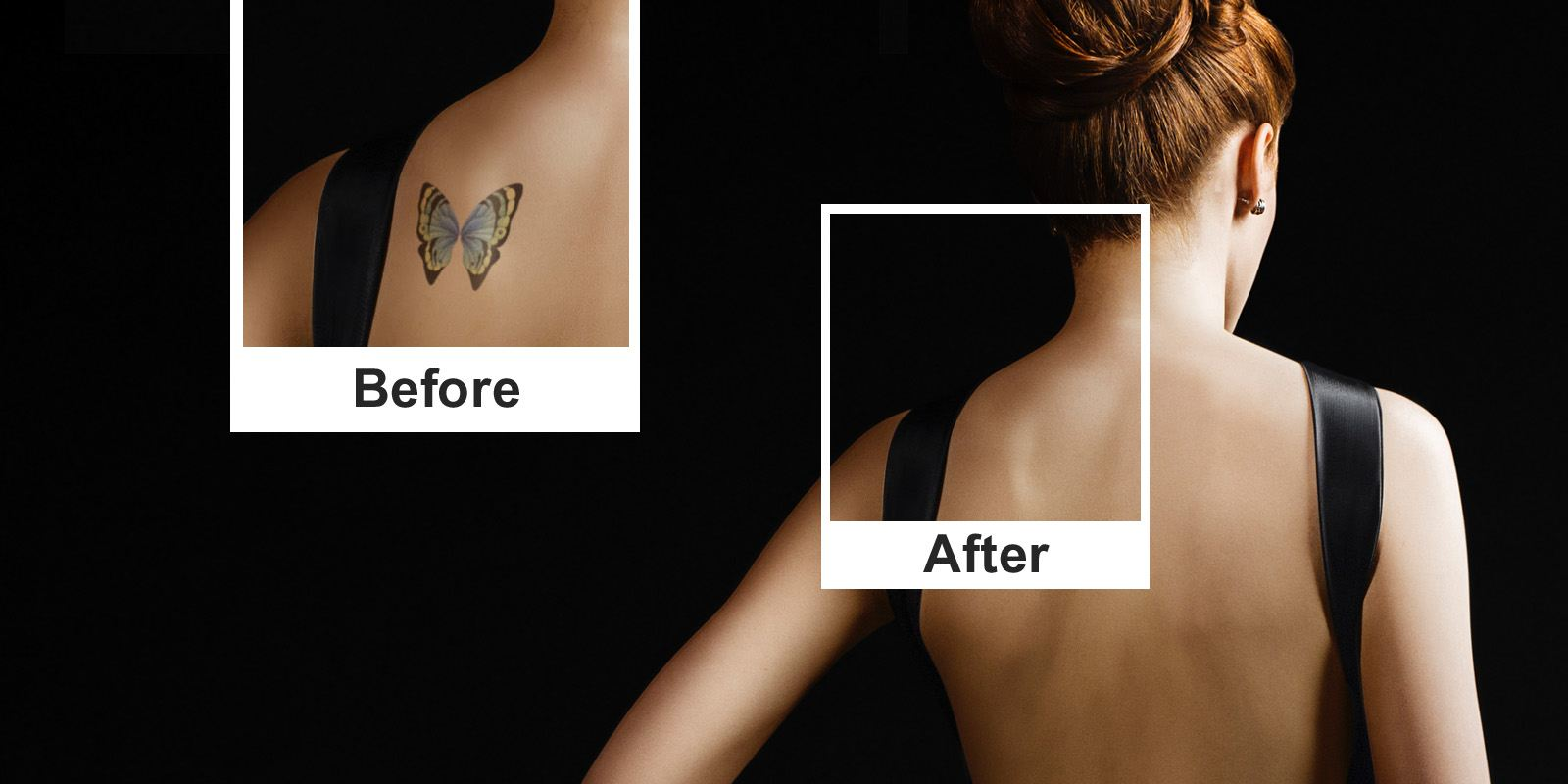 Florida Tattoo Removal - Before and After Photo