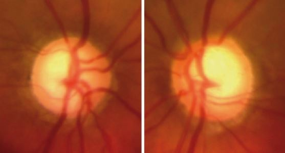 Optic Nerve Glaucoma