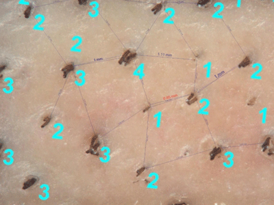 Mosaic Hair Restoration: Mapping Natural Dispersion of Hair Across Scalp