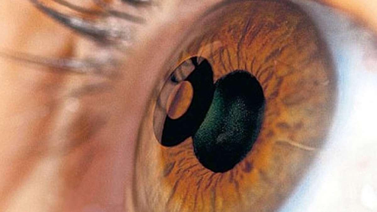 New Procedure To Eliminate Reading Glasses Laser Eye