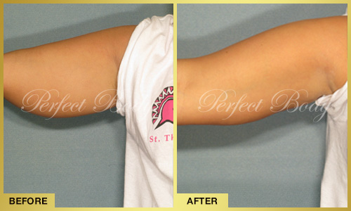 Perfect Body Laser Fat Reduction for Arms – Before and After