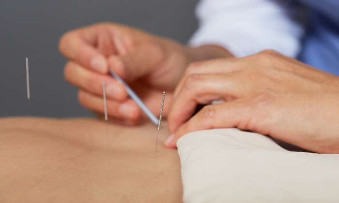 Why Most People are Choosing Acupuncture as a Treatment ...