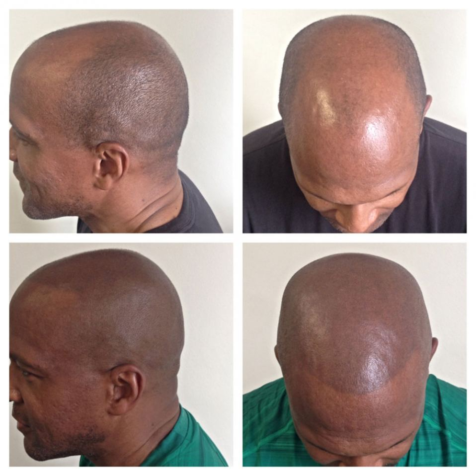 When To Get A Scalp Tattoo Or SMP Micropigmentation