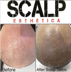 Best Scalp Micropigmentation Clinic in Toronto Ontario
