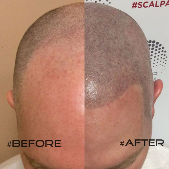 Finding The Best Scalp Micropigmentation Clinic In Toronto Scalp Esthetica Prlog