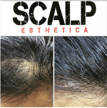 SMP Hair Density Treatment in Toronto