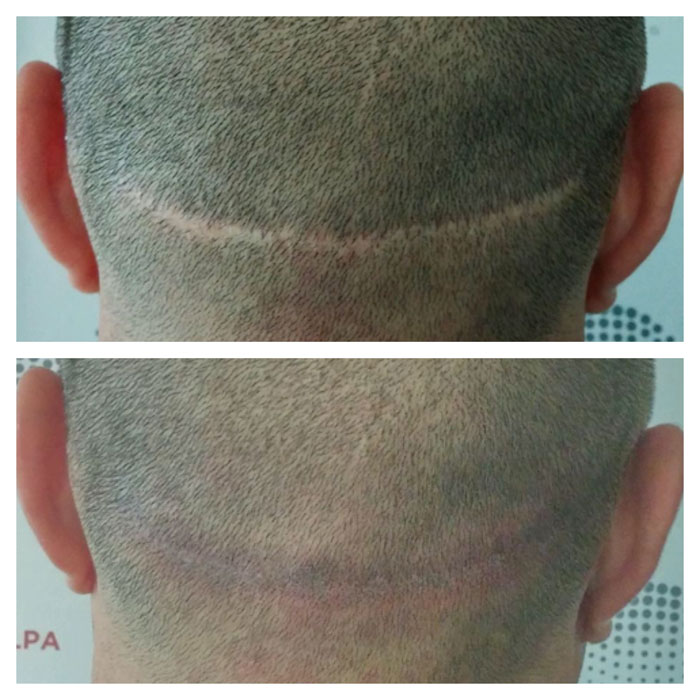 Scalp Micropigmentation: The Truth About SMP Scalp Tattoo and Hair ...