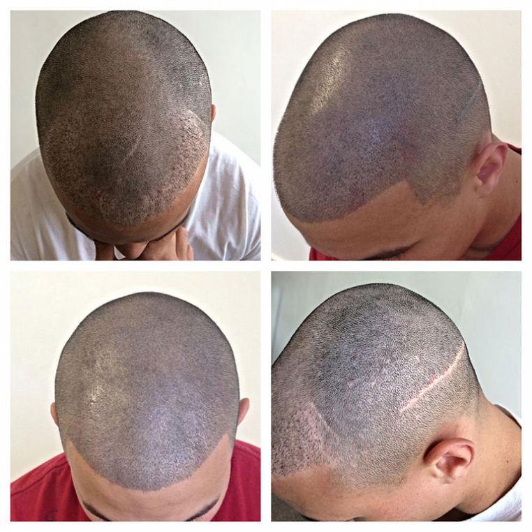 Scalp Micropigmentation Scalp Tattoo And Hair Tattoo At