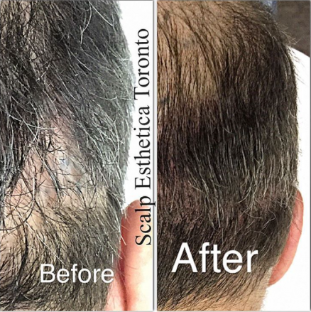 Scalp Micropigmentation At Scalp Esthetica Finally A