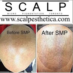 SMP Scalp Tattoo Toronto