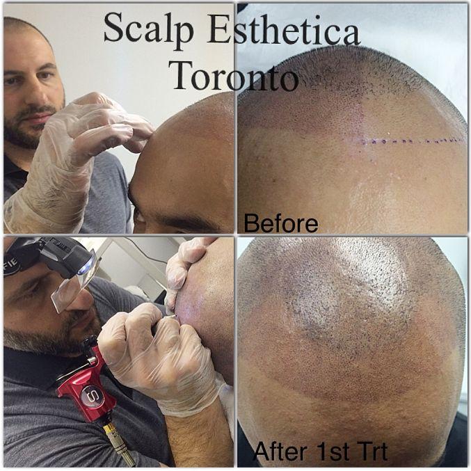 Scalp Micropigmentation SMP Training Canada