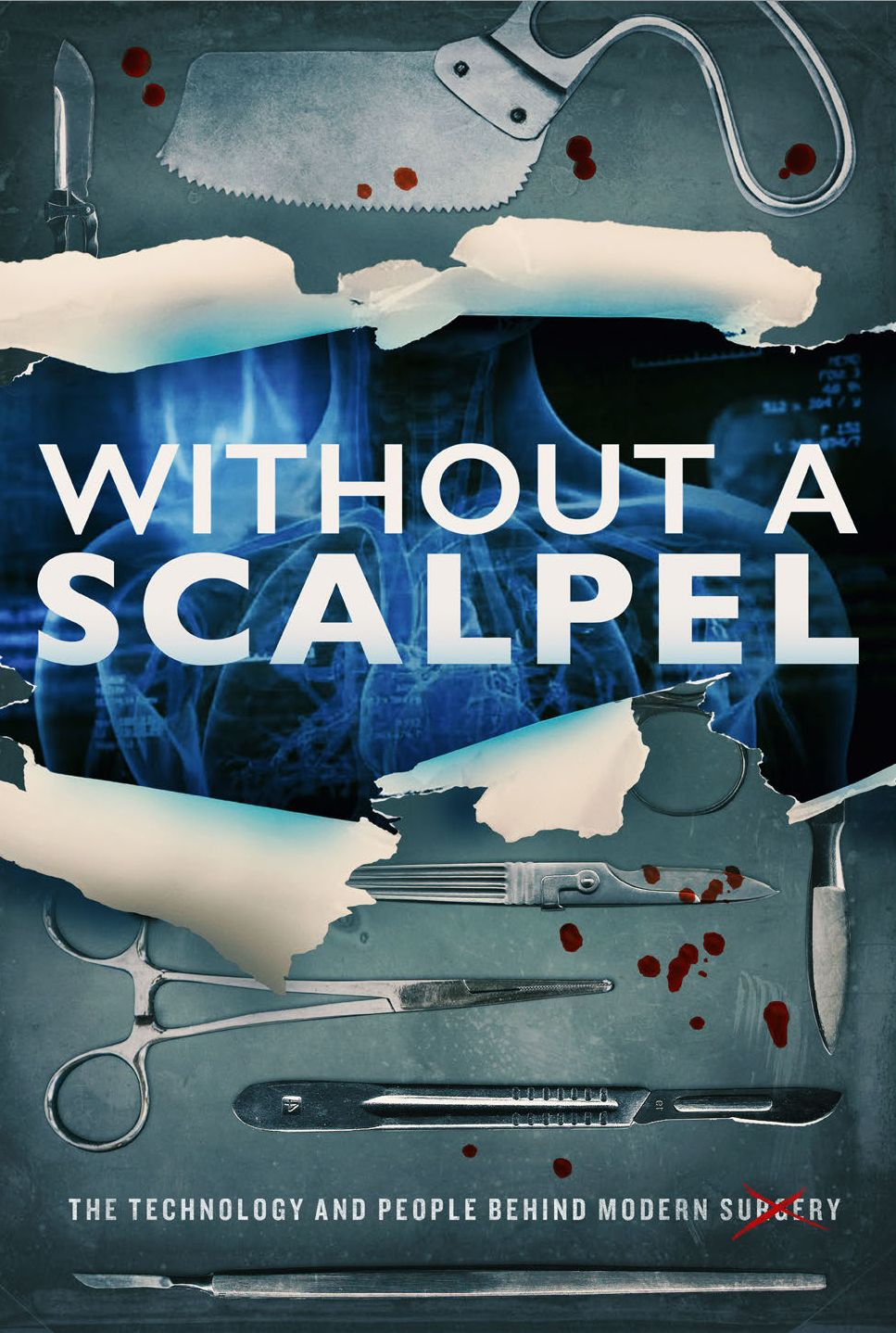 Without a Scalpel Poster Art 2