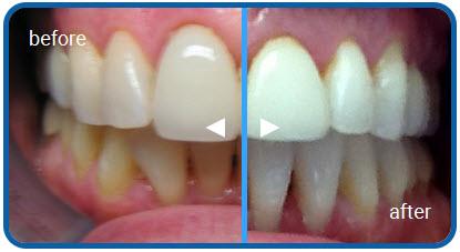 Before and After Porcelain Veneers - By Ken Cirka DMD, Philadelphia Dentistry