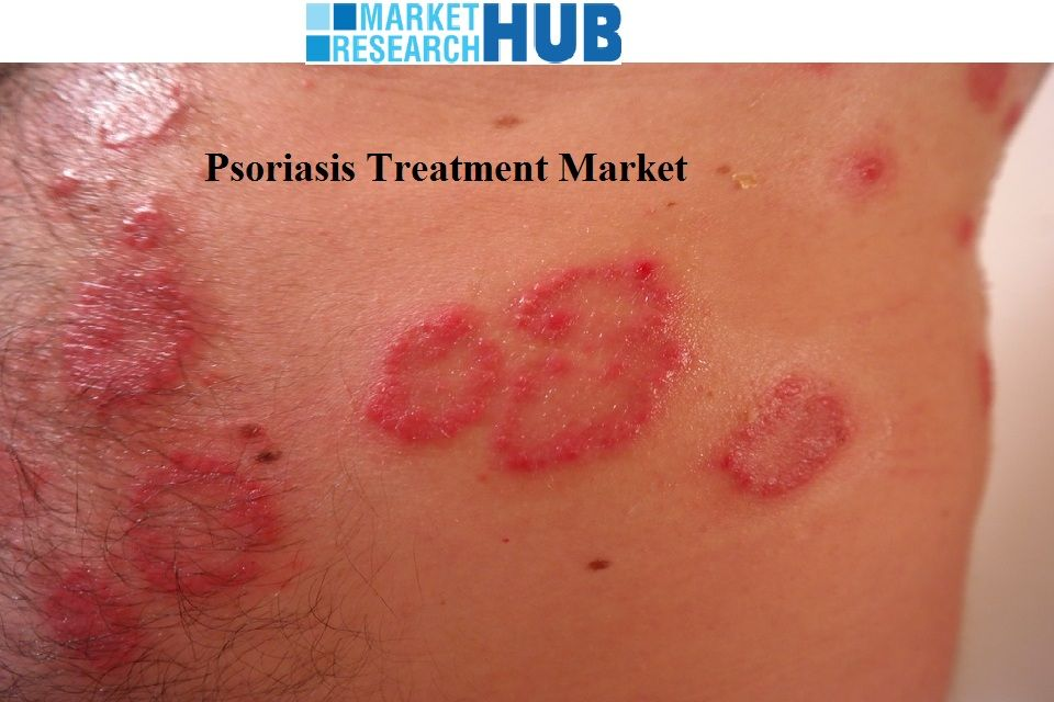 an analysis of psoriasis treatment Cost-efficacy analysis of biological treatments in psoriasis: an 18-month assessment article.