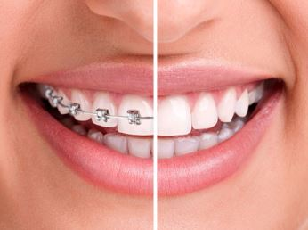 Residents of Wilmington can choose between Invisalign or braces in Exton, PA.