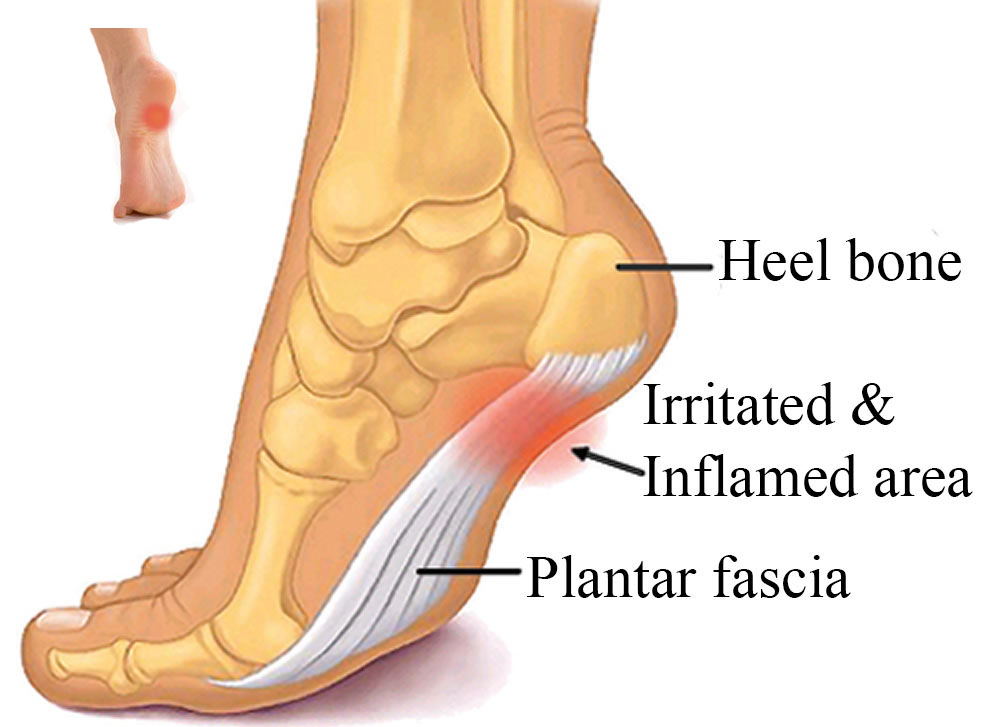 Common Foot Problems Pain - Traumatic Foot Injury -- Abigail store ...