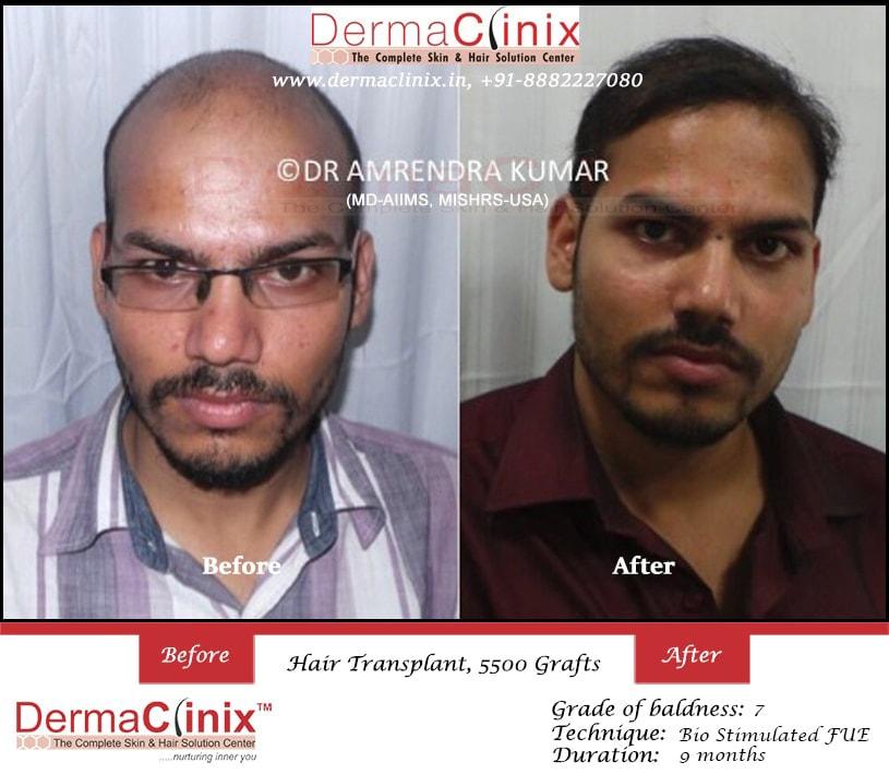 Hair Transplant by Dr. Amrendra Kumar at DermaClinix