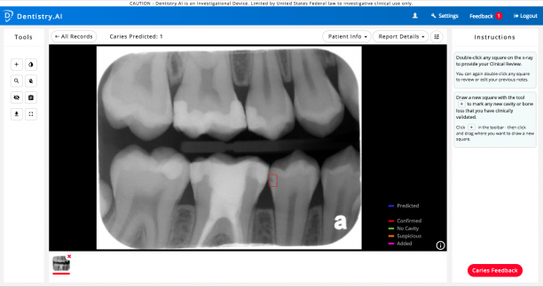Snapshot of Dentistry.AI application