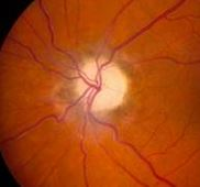 Optic Nerve Atrophy