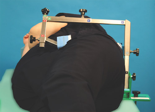 IMP hip positioner for obese patients