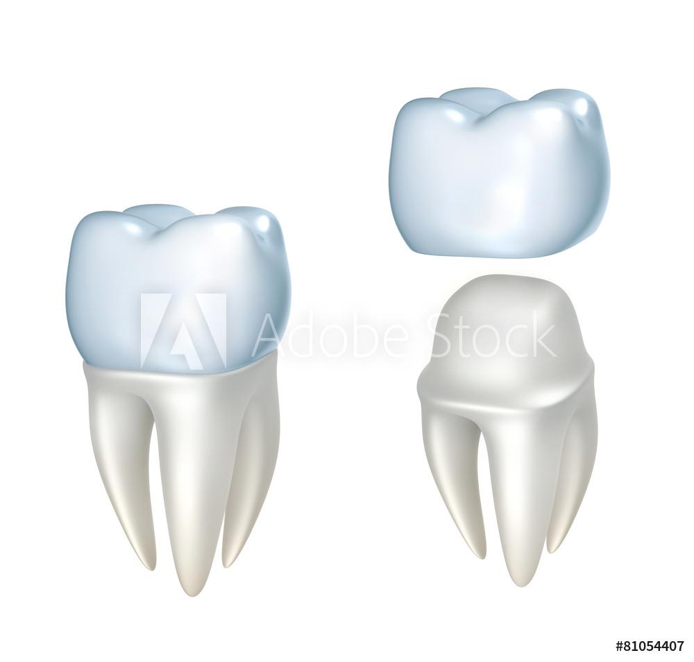 RLJ dental crown.