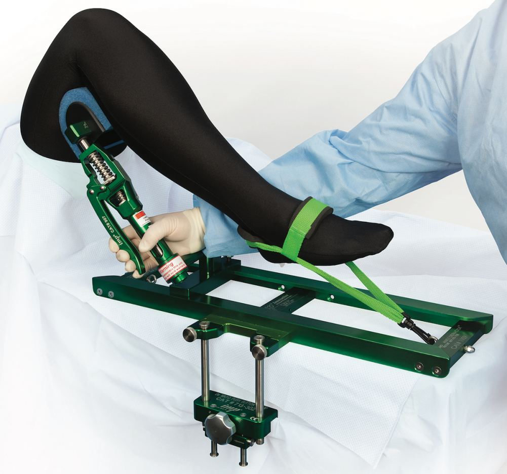De Mayo Ankle Distractor® System