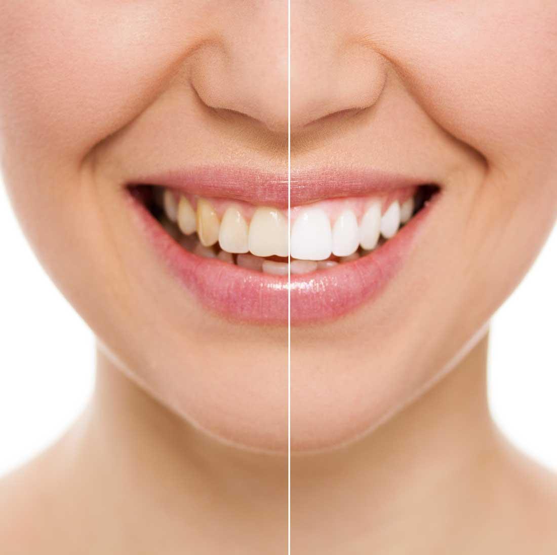 RLJ Dental aesthetic dentistry